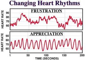 Image of varying heart rythms