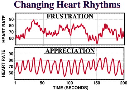 Heart Rate Variability Rythm Graph
