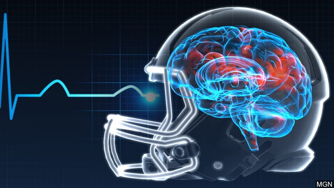 Brain concussion with football helmet on